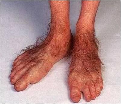 Big Hairy Toes 98